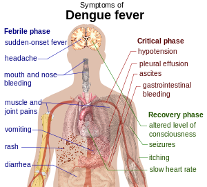 Main symptoms of dengue fever. To discuss imag...